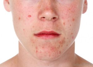 Acne treatment Cheltenham